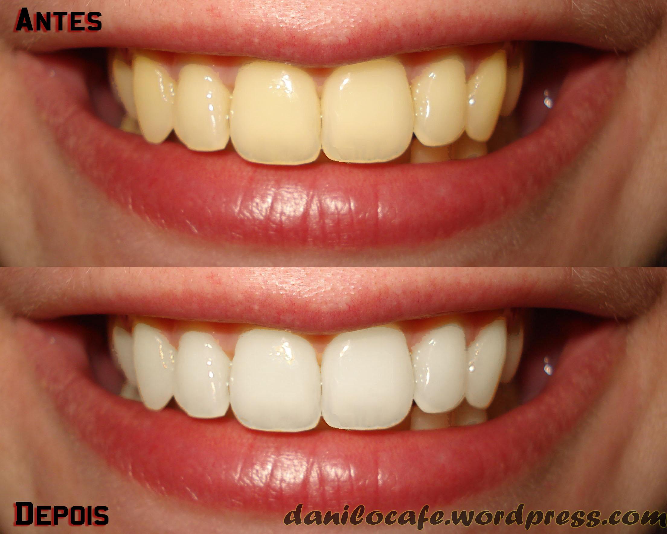 Photoshop Clareamento Dental Blog Do Multiuso